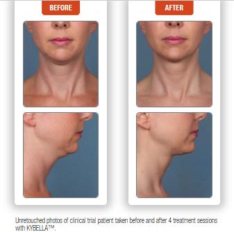 how to get rid of a double chin, kybella denver colorado, kybella specials denver