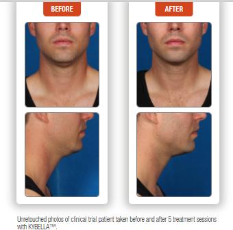 Kybella for Men denver colorado,  how to fix my double chin colorado, kybella specials denver