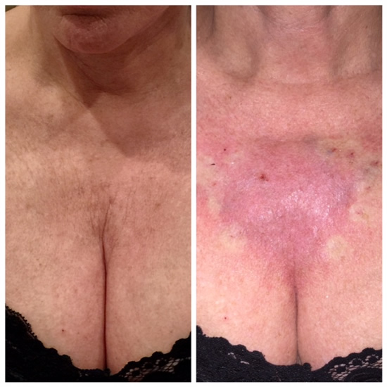 PDO Thread treatment before and after showing chest area.