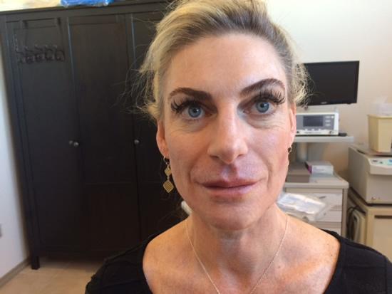 PDO Thread facial procedure results performed at La Fontaine Fusion Spa in Denver Colorado.
